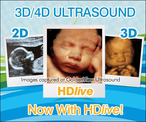 3D Ultrasound / 4D Ultrasound - Boston, Chicago, New York